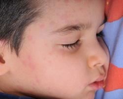 rash child