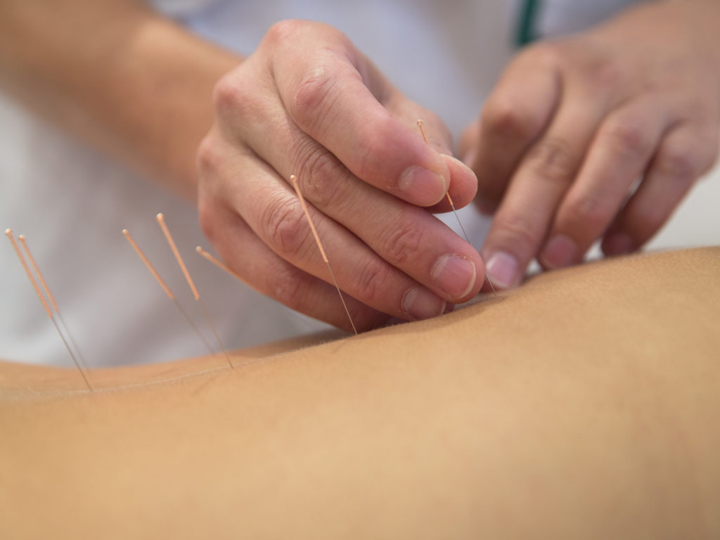 How to Ease Constipation with Acupuncture foto