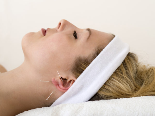 Beautiful woman having acupuncture. Beautiful woman relaxing on a bed having acupuncture treatment with three fine needles in and around her ear lobe