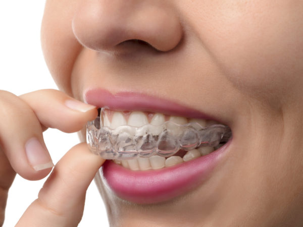 Woman wearing orthodontic silicone trainer. Invisible braces