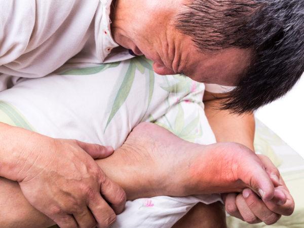 Does Gout Cause Diabetes? | Diabetes | Andrew Weil, M.D.