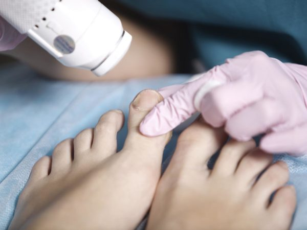 Woman receiving laser treatment on her feet for the treatment of a mild fungal infection in the toenails known as onychomycosis, or to rejuvenate the skin for summer