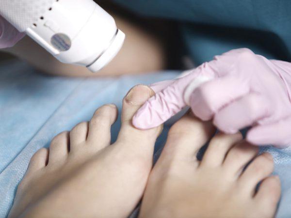 Mulher a receber tratamento laser nos pés para o tratamento de uma infecção fúngica leve nas unhas dos pés conhecida como onicomicose, ou para rejuvenescer a pele para o verão