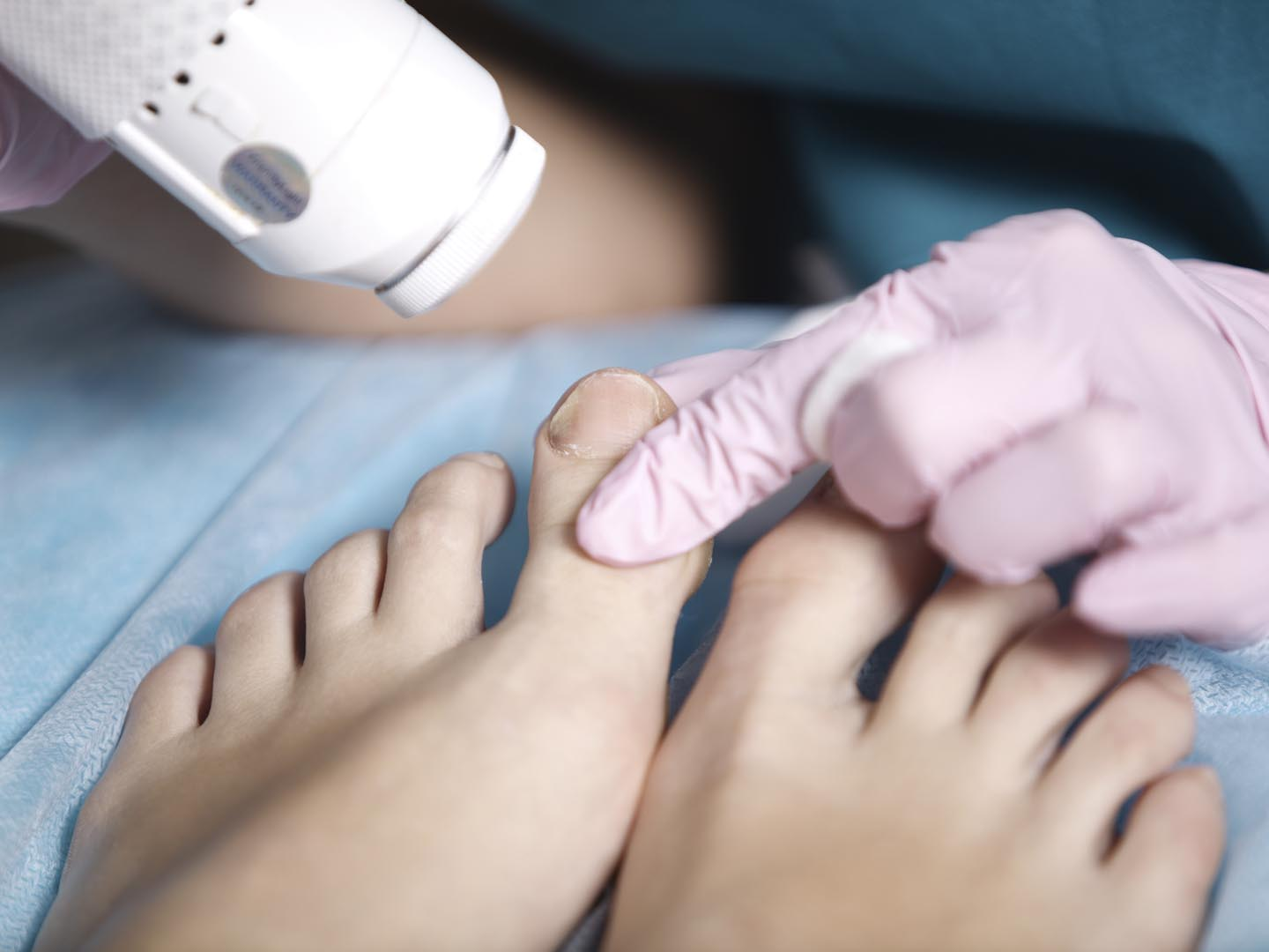 health-wellness_body-mind-spirit_feet_cosmetic-surgery-for-your-feet_2718%C3%971808_32760824.jpg
