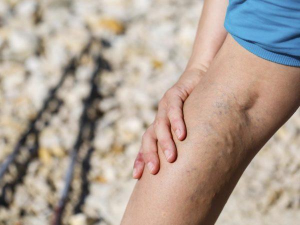 Varicose Veins | Leg &amp&#x3B; Foot Health | Andrew Weil, M.D.