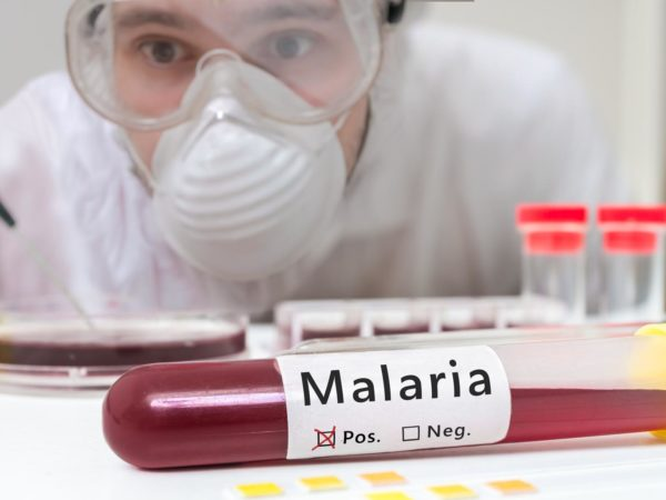 Researcher is analyzing test tube with Malaria.