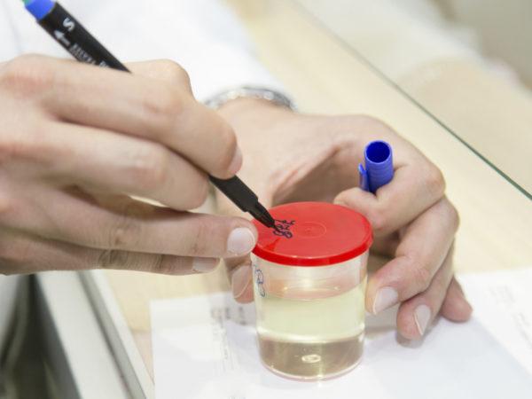Urine sample marked