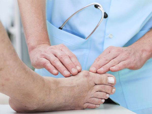 Bunions &amp&#x3B; Bunion Care | Foot Health | Andrew Weil, M.D.