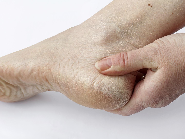 Почему трескаются пятки на ногах? Как их лечить и в чем 92