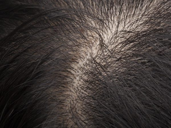 Female Baldness Can I Stop My Hair From Thinning