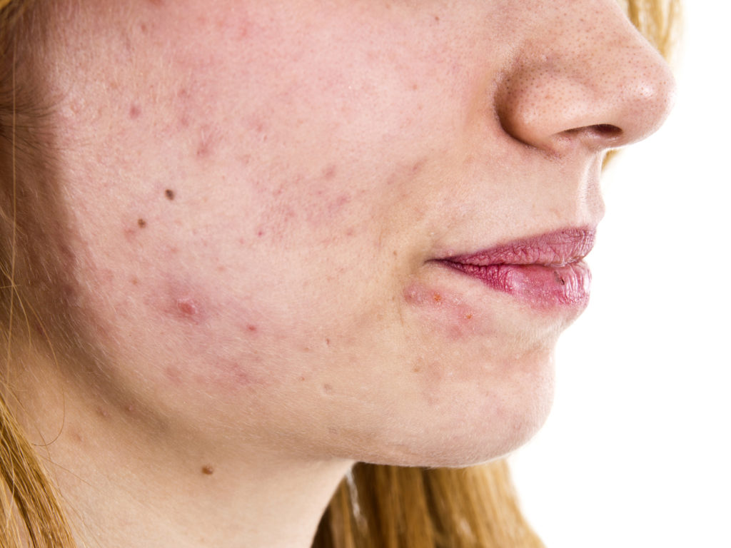 Bacteria That Causes Acne