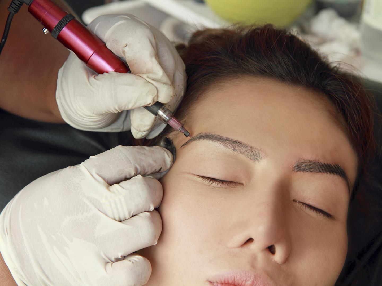 окончании картинки лазера татуаж медицинскую