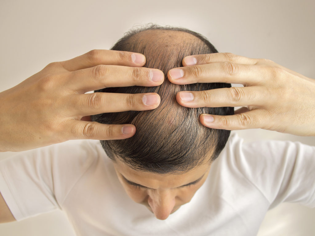 Inflammation of hair follicles: causes and methods of treatment 70