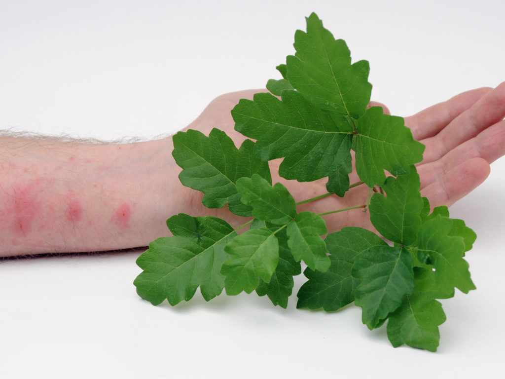 Poison Oak and Poison Sumac Symptoms Treatment and