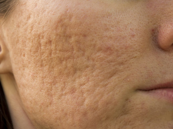 Removing Acne Scars? - DrWeil com