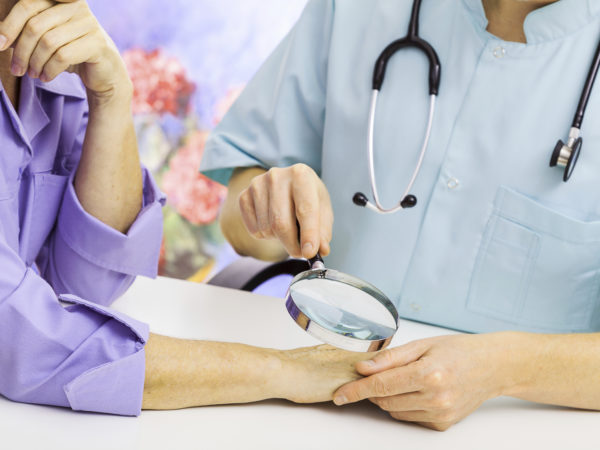 Dermatologist looking at woman's hand through a magnifying glass
