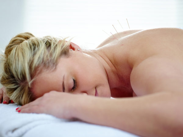 Acupuncture needles on the back of a young woman lying on massage table at health spa