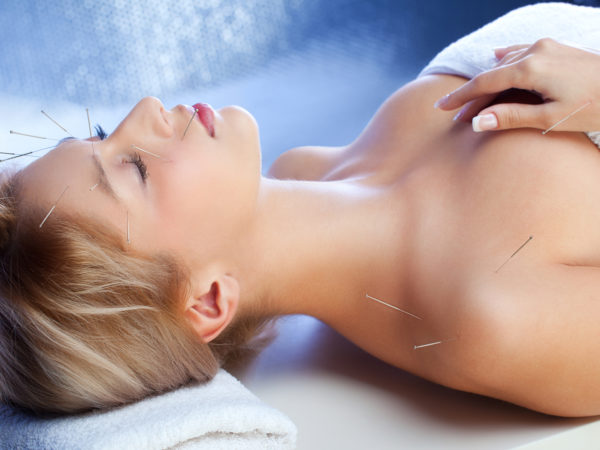 """Closeup of beautiful young woman with Acupuncture Needles during healing treatment, selective focus"""