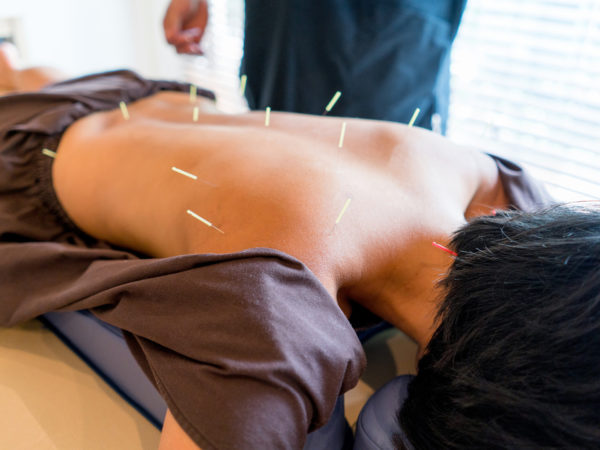 Woman at the acupuncturist with needles placed in her back - Asian culture