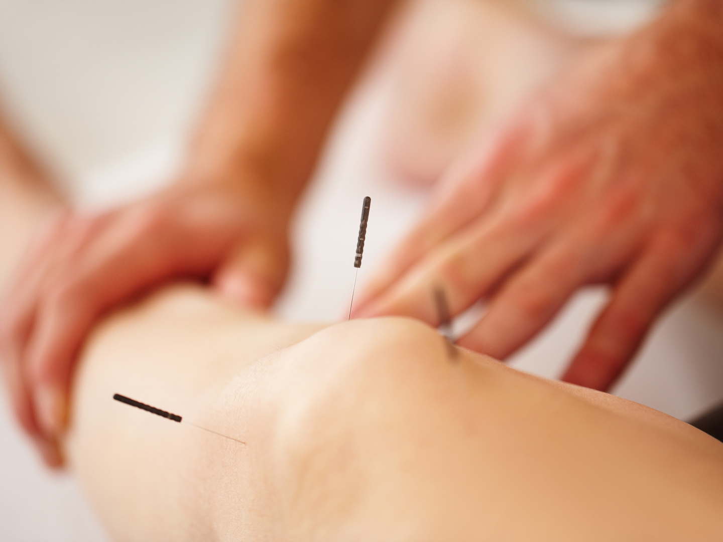 What is Acupuncture? | Benefits of Acupuncture ...