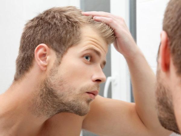 health-wellnessbody-mind-spirithair-skin-nailsbalding-too-young_522436975