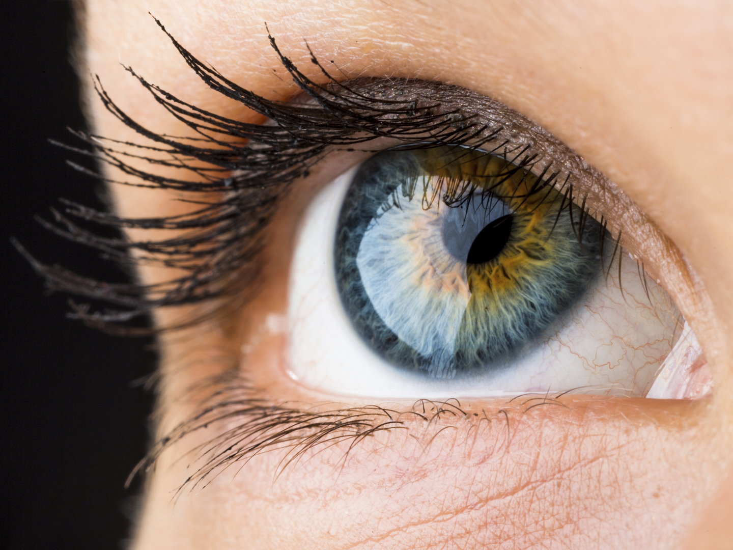 Burst Blood Vessels In The Eye? | Vision | Andrew Weil, M D