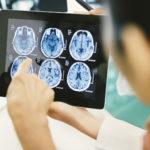 diet for bigger brain