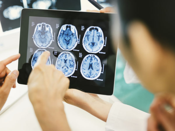 do concussions cause parkinsons