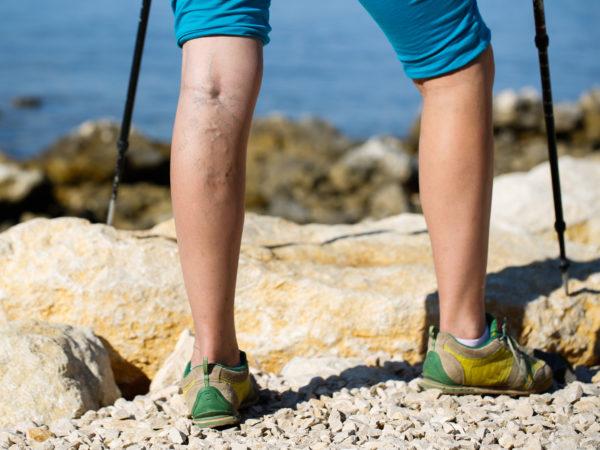 Vexed By Varicose Veins?   Andrew Weil, M.D.