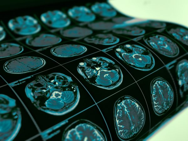 Testing Alzheimer's Risk | Weekly Bulletins | Andrew Weil, M.D.
